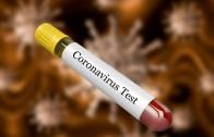 188 нови заразени с коронавирус, 5 в областта на домашно лечение.